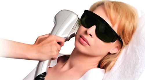 Фотоэпиляция лица: удаление волос светом