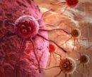Сидячий образ жизни связали еще с 9 видами опухолей